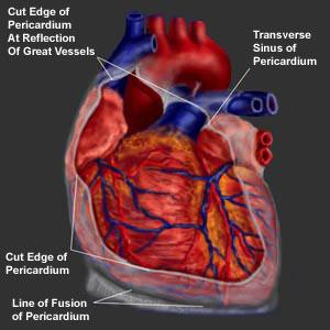 Pericarditis Congenital Heart Disease Cove Point