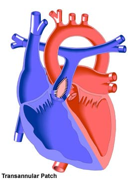 Transannular patch pulmonary valve location